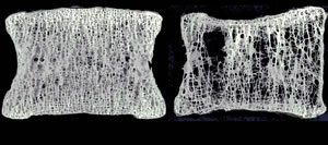 骨のレントゲン